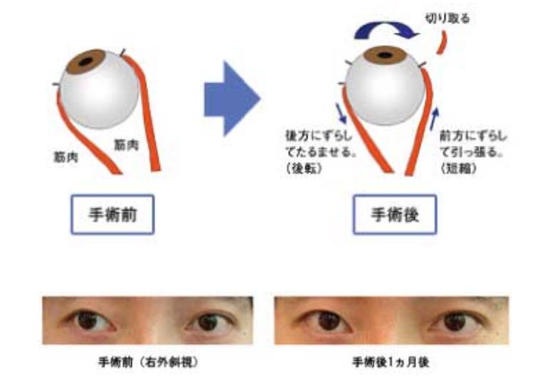 斜視 治し 方 内 「斜視」は治療しないといけない病気なのか